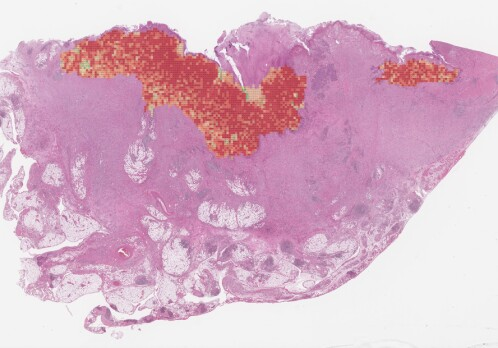 Bowel cancer: Artificial intelligence can reduce overtreatment and wrong treatment