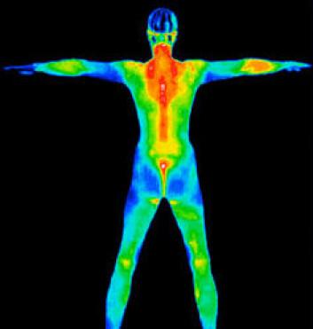 Hudtemperaturen varierer, men forskjellene skal ikke være for store om du skal trives. (Foto: Wikimedia Commons)