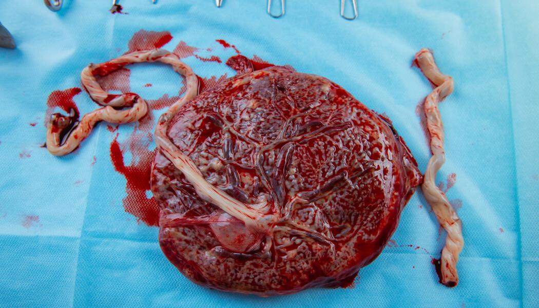 Morkaken undersøkes om den er hel etter fødselen. Hvordan morkaken vokser, kan gi en pekepinn på hvordan fosteret har hatt det i livmoren.
