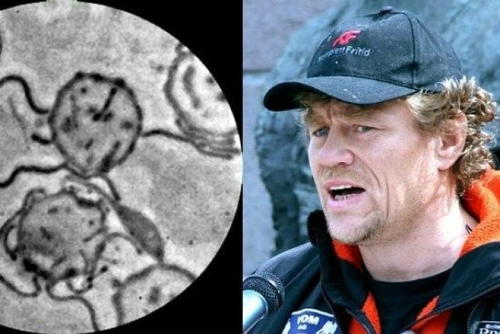 To UiO-forskarar hevdar å ha påvist borreliabakteriar i blodet til blant anna Lars Monsen. (Foto: UiO/NRK montasje)