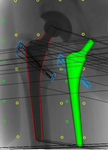 Bildet viser hvordan legene gjennomfører 3D-analyser på røntgenbilder av et hofteimplantat. På røntgenbildet er hofteprotesen markert med rødt, mens den grønne delen er en 3D-modell av protesen. Metallkulene i pasientens knokler (blå sirkler) tjener som markører for om protesen har flyttet seg eller blitt slitt. De grønne og gule kulene er markører som befinner seg i en boks under pasienten og i selve røntgenapparatet. (Foto: (Illustrasjon: Maiken Stilling))