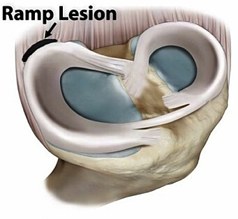 "This is what a ""ramp lesion"" looks like: the meniscus is torn away from its attachment in the joint capsule."