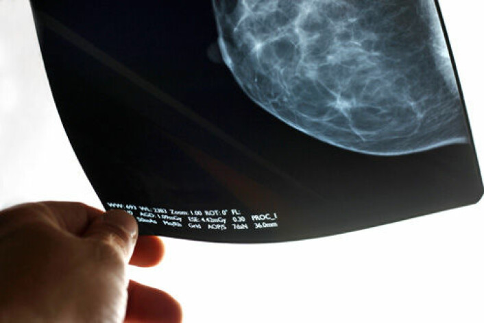 Forskere er uenige om effekten av screening med mammografi for brystkreft. (Foto: iStockphoto)