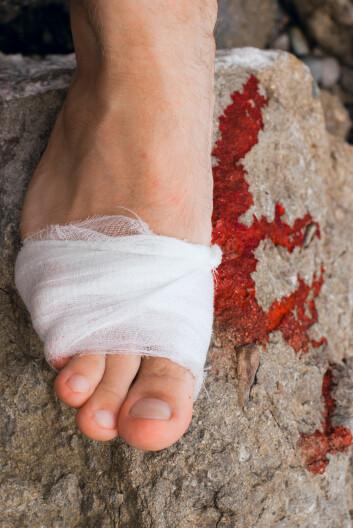 Ben og føtter skades oftest. (Foto: Colourbox)
