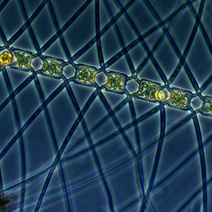 Planktonalgen Chaetoceros atlanticus. (Foto: Marina Montresor, SZN / Alfred Wegener Institute)