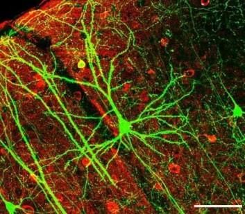 I fosterets hjerne dannes det tusenvis av nerveceller hvert eneste minutt. Ifølge Philippe Grandjean er det minst 200 kjemikalier i bruk i dag som kan skade hjernens utvikling og dermed dannelsen av nevroner. (Foto: Wei-Chung Allen Lee en al., Wikimedia)