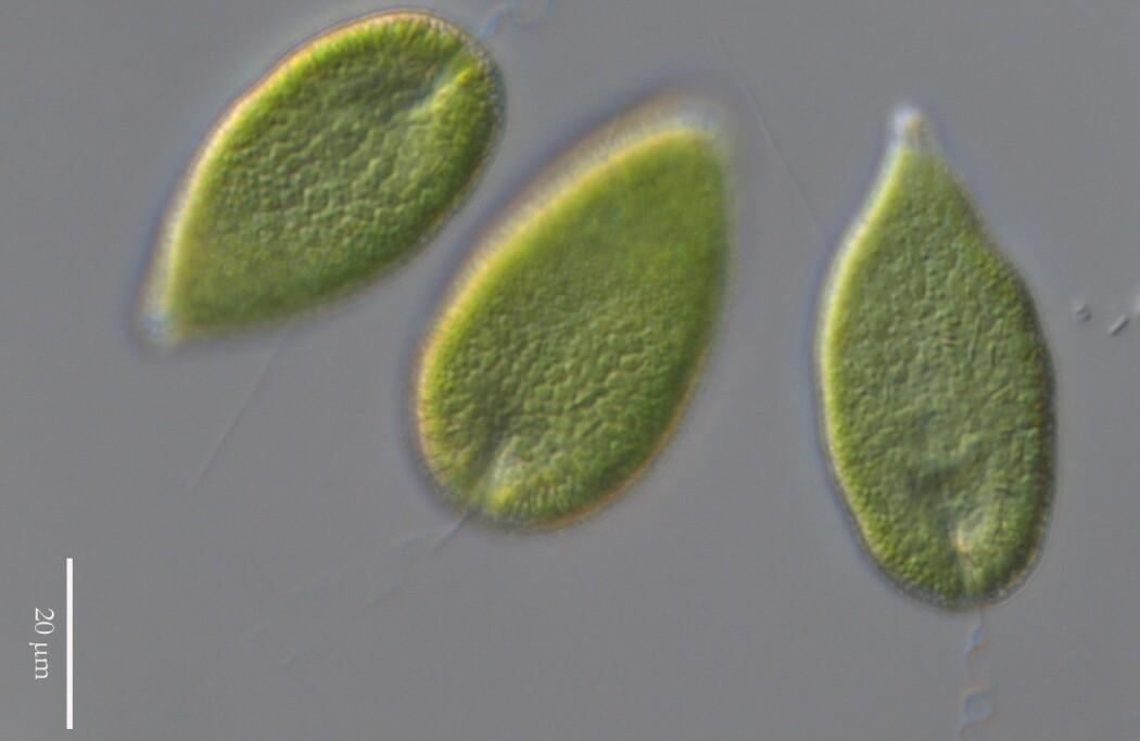 Algen Gonyostomum semen under mikroskop. Disse trives ekstra godt i brune innsjøer.