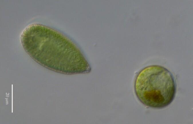 Algen Gonyostomum semen med hvilespore under mikroskop.