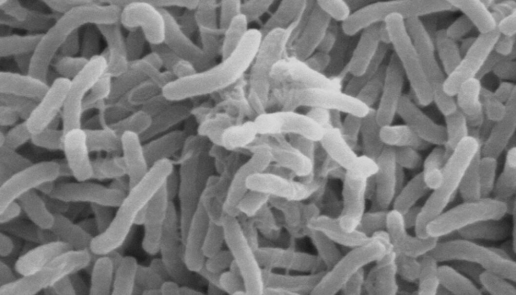 Kolera-bakterier sett gjennom et elektron-mikroskop. Wikimedia Creative Commons