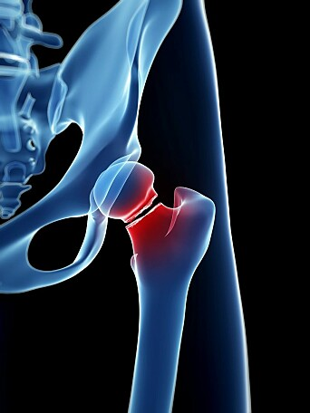 Many of the patients who are operated on for hip fractures are older, and mortality is high.