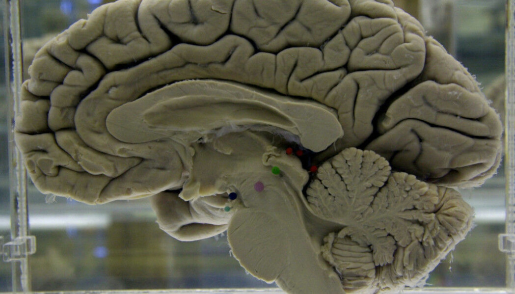 Vi mennesker har en hjerne som er nesten seks ganger større enn de fleste andre pattedyrene som er omtrent så store som oss.