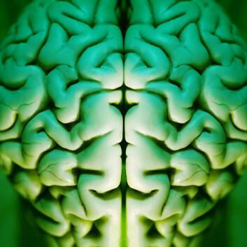 Forskarar hausta levande celler frå døde hjernar, og omprogrammerte dei til stamceller. (Foto: (Foto. www.colourbox.com))