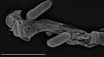 Mikroorganismene du har i kroppen påvirker deg, men hvordan?