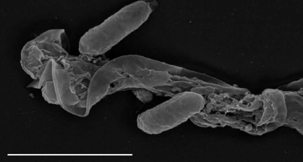 En sædcelle som stammer fra en bokfink-hann som har vært uheldig med mikrobiomet i sædvæsken: Den har gått helt i oppløsning.