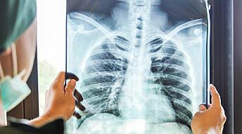 Ny og treffsikker metode for å oppdage lungekreft