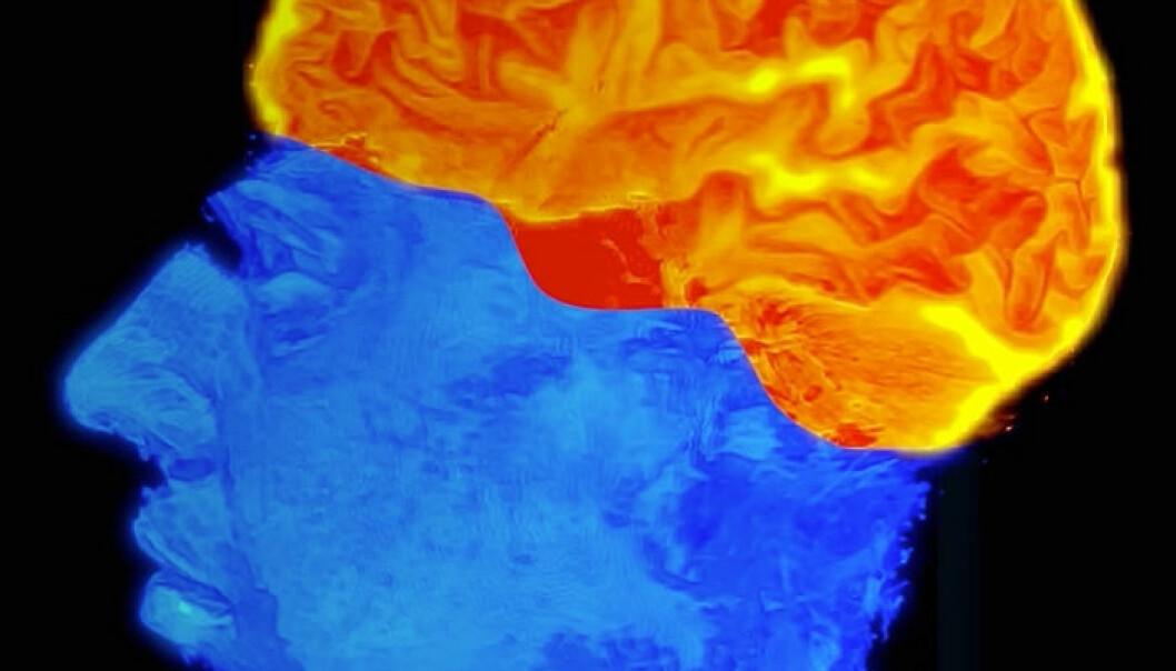 Ifølge den såkalte REF-modellen består hjernen både av spesialiserte sentre og særlige «programmer» som kan kombinere sentrene på nye måter gjennom hele livet. Derfor er hjernen plastisk – den endrer seg alt etter hvilke opplevelser vi har. (Bilde: Intervensjonssenteret, Oslo Universitetssykehus Rikshospitalet/Per Byhring, forskning.no)