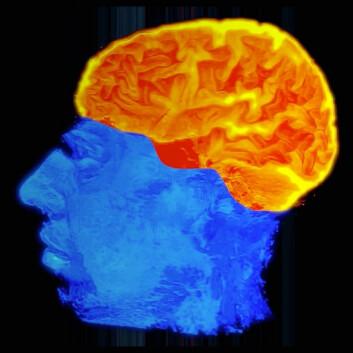 Ifølge den såkalte REF-modellen består hjernen både av spesialiserte sentre og særlige «programmer» som kan kombinere sentrene på nye måter gjennom hele livet. Derfor er hjernen plastisk – den endrer seg alt etter hvilke opplevelser vi har. (Foto: (Bilde: Intervensjonssenteret, Oslo Universitetssykehus Rikshospitalet/Per Byhring, forskning.no))