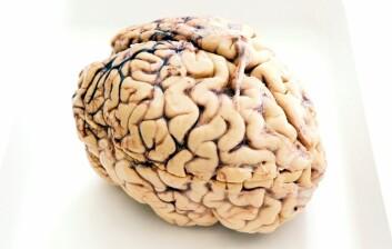 Du har egne nerveceller som beregner hvordan du beveger deg. En indre GPS. (Foto: NTNU)