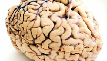GPS-celler funnet i menneskehjerner