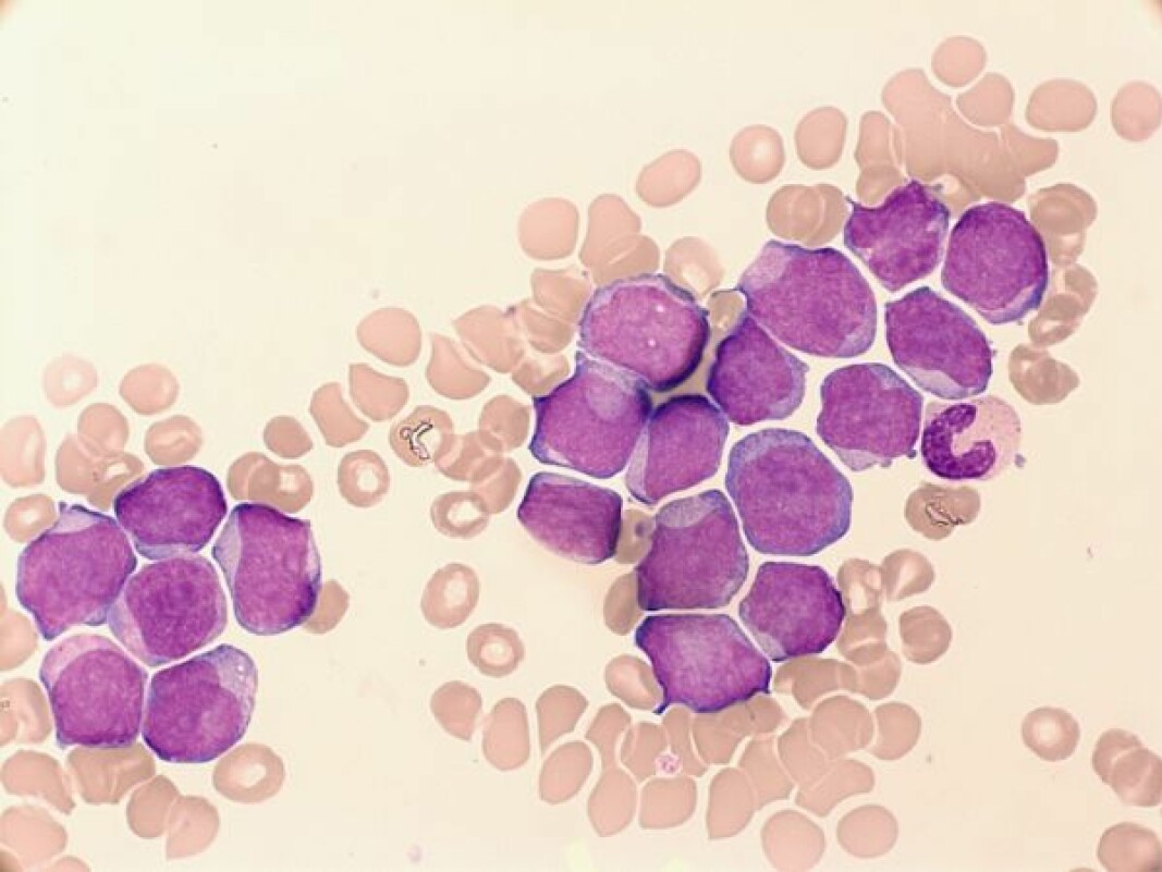 AML patient sample showing a subset of aberrant cells (purple) among normal population (pink).