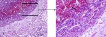 Betennelsesknuter forårsaket av sopp. Vevet er farget med en metode som gir sopphyfene en sterk rosa farge. Bildet til venstre viser tydelig lagdeling der ulike celletyper inngår. Til høyre er en del av bildet forstørret for å vise sopphyfene tydelig (pil). (Foto: Mona Gjessing)