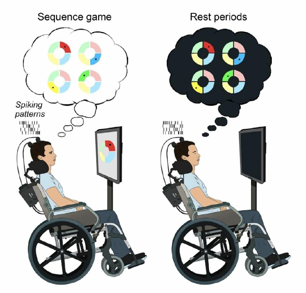 Slik så eksperimentet til forskerne ut. Bildet illustrerer hvordan hjernen til forsøkspersonene spilte videre i sove- eller hviletilstand.