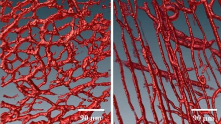 Blodårer i ein svulst (venstre) er meir kaotisk og meir lekk enn blodårer i normalt, friskt vev (til høgre). (Foto: Nina Kristine Reitan, NTNU)