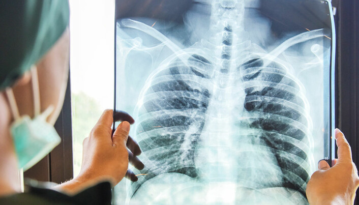 New NTNU method for accurately detecting lung cancer
