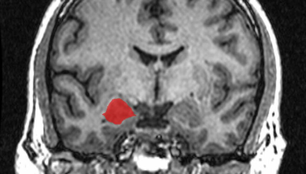 Amygdala (rødmerket område), sett i MRI-hjerneskanning bakfra. (Foto:Amber Rieder, Jenna Traynor, Geoffrey B Hall, Creative Commons)