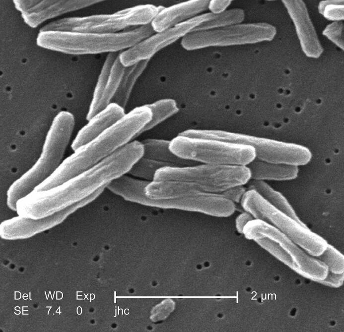 Tuberkulose-bakterien tar livet av ti ganger så mange mennesker i verden som krig og konflikter. Rundt to millioner dør hvert år av denne bakteriesykdommen.