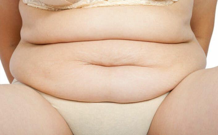 Fedme er et økende problem, og forårsaker blant annet diabetes. (Foto: Colourbox)
