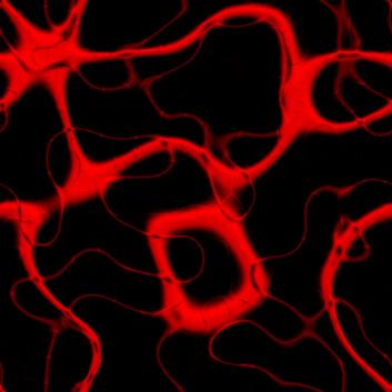 En aneurisme er en sekkformet utposning av veggen i et blodkar. Skjer utposningen på hovedpulsåren, aorta, kalles den en aortaaneurisme. (Foto: Colourbox)