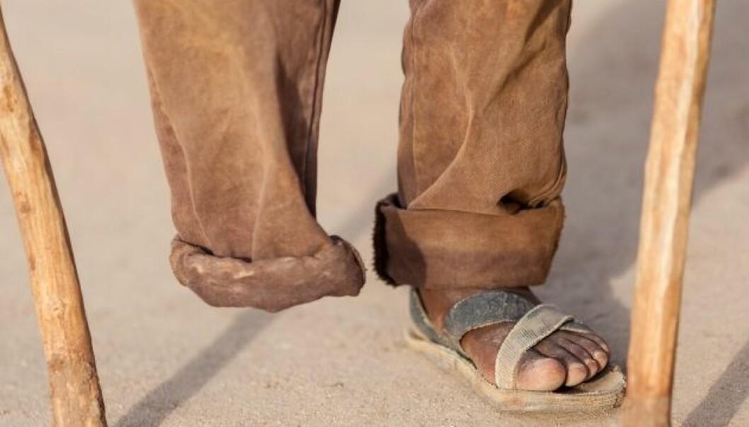 Hjernen oppfatter ikke alltid at en fot er borte, og fortsetter å sende signaler til den manglende kroppsdelen. iStockphoto
