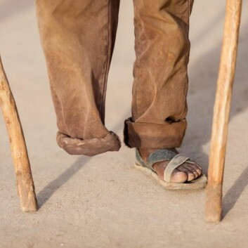 Hjernen oppfatter ikke alltid at en fot er borte, og fortsetter å sende signaler til den manglende kroppsdelen. (Foto: iStockphoto)