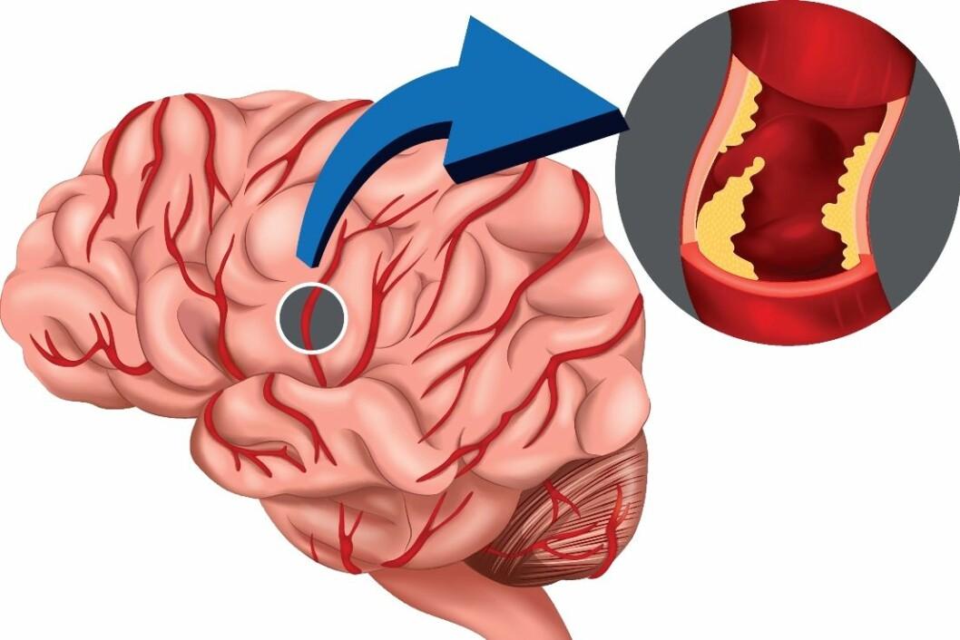 En hjerneblødning oppstår fordi det går hull på et lite kar i hjernen. (Foto: Colourbox)