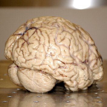 Det er uvisst om endringene i hjernen var permanente. (Foto: Bjørnar Kjensli) (Foto: Bjørnar Kjensli)