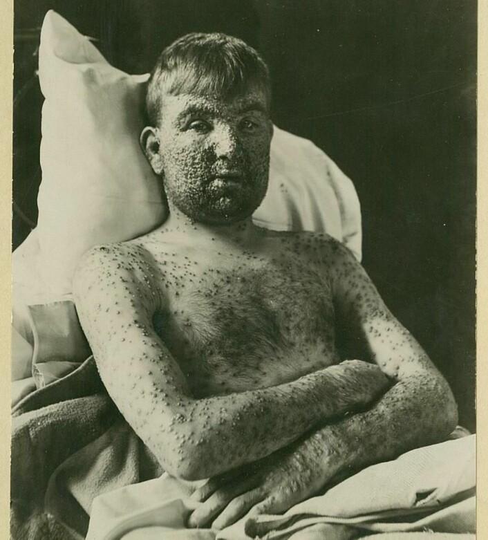 Pasienten fikk som regel flest kopper på ekstremitetene - i ansiktet og på armer og bein. (Foto: Oslo universitetssykehus Ullevål)
