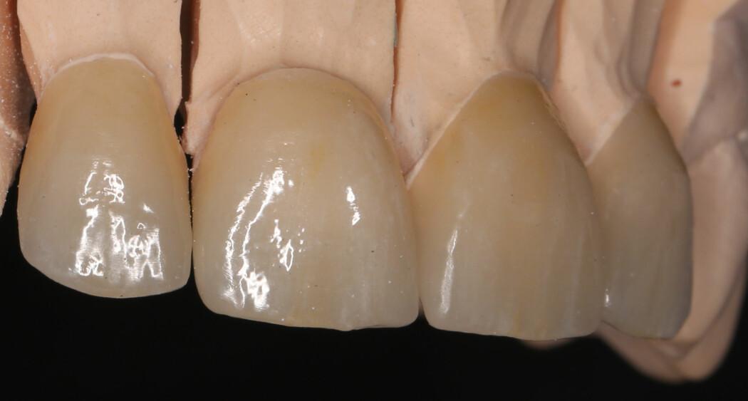 Eksempel på kroner i litium disilikat-forsterket glasskeram, et av de nye materialene som kroner lages i.