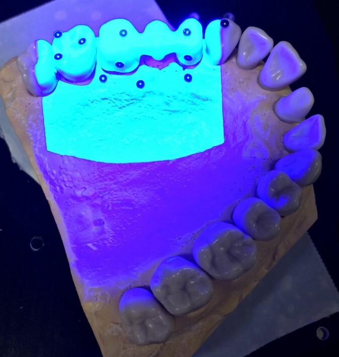 Metoden trippel-skann gjør det mulig å undersøke sementspalten mellom tenner og kroner nøye.