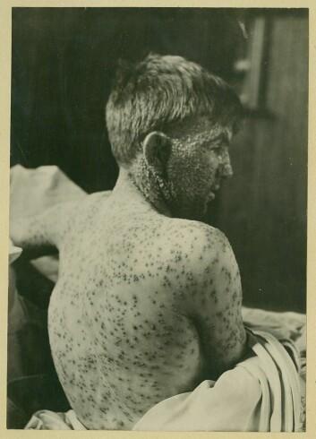 Særlig barn ble hardt angrepet av variola major. (Foto: Oslo universitetssykehus Ullevål)