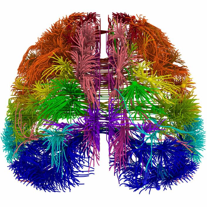 3D-bilde sett ovenfra og nedover av forbindelser mellom forskjellige deler av hjernebarken til en mus. (Foto: (Figur: Allen Institute for Brain Science))