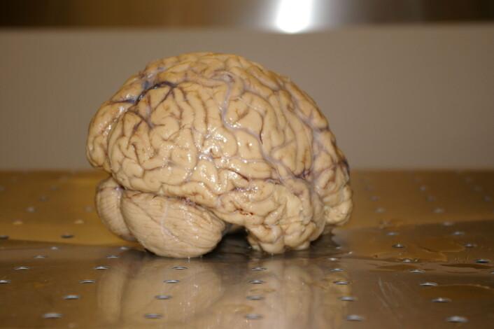 Menneskehjerne fotografert ved Universitetet i Oslo. (Foto: Bjørnar Kjensli)