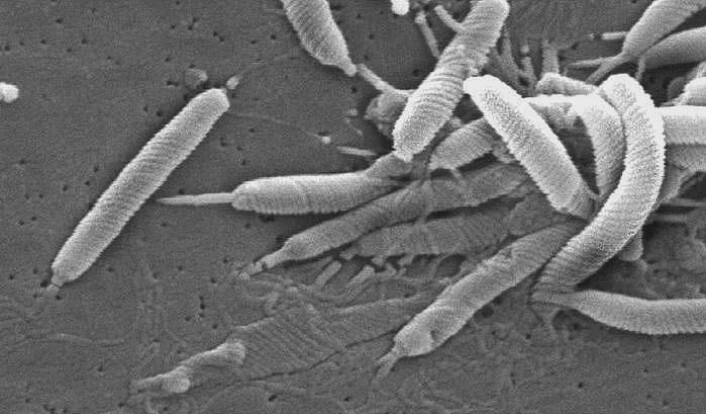 Helicobacter pylori fotografert med elektronmikroskop. (Foto: Janice Carr/Wikimedia Commons)
