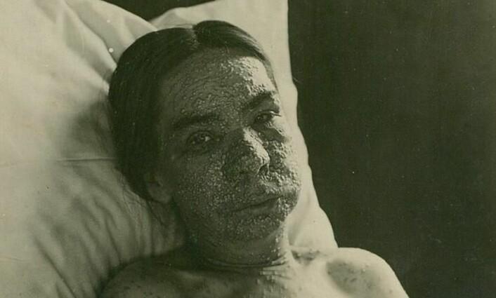 Infeksjoner og væskeansamlinger under huden i ansiktet kunne gjøre pasienten ugjenkjennelig. (Foto: Oslo universitetssykehus Ullevål)