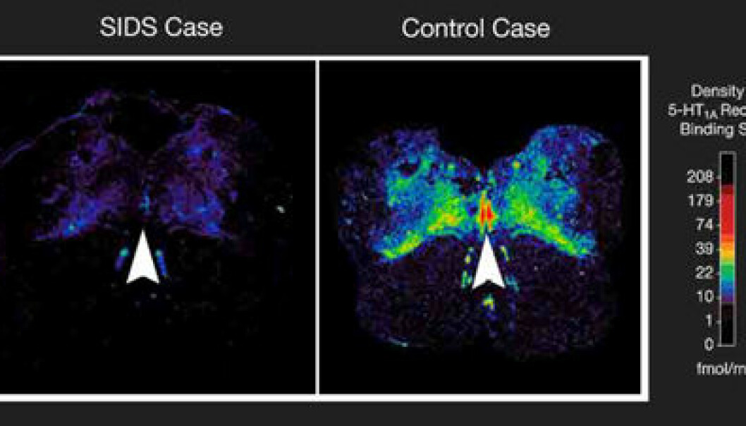 """""""Spedbarn som ble rammet av krybbedød hadde lavere antall såkalte 5-HT1A-reseptorer, som er reseptorer for serotonin. Bildet over viser et snitt av hjernestammen, og den røde fargen viser den største konsentrasjonen av reseptorer. (Foto: David Paterson, Ph.D., Children's Hospital Boston)."""""""