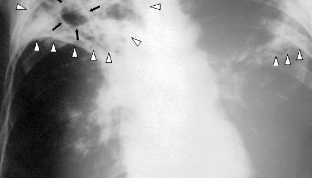 Tuberkulose avsløres som regel ved røntgenfotografering av lungene. På verdensplan dør omkring 1,3 millioner mennesker hvert år av tuberkulose. Det tallet kan stige hvis den multiresistente tuberkulosen brer seg. Den kan nemlig ikke bekjempes med de medisinene man normalt bruker. Center for Disease Control and Prevention/Wikipedia Commons