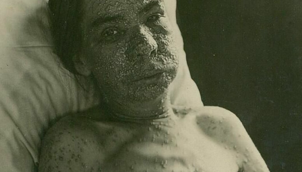 En koppepasient ved Ullevål sykehus, sannsynligvis rundt år 1900. Oslo universitetssykehus Ullevål