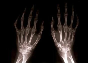 Lav bentetthet kan gi skjøre ben. Da kan spesielt håndleddene lett knekke. (Illustrasjonsfoto: www.colourbox.no)