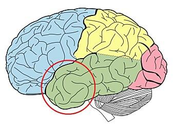 Fremre tinninglapp huser blant annet hippocampus, som er viktig for vår kortidshukommelse. Det var i dette området forskerne undersøkte den elektrisk aktiviteten.
