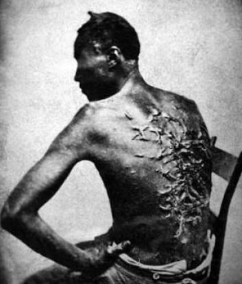Arr hos en pisket slave, Peter fra Louisiana i USA. Slavereglementet fra Dansk Vestindia viser at pisking og avskjæring av lemmer var mulige straffer også der, hvis slavene rømte eller gjorde opprør. (Foto: National Archives and Records Administration)